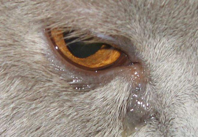 слезящиеся глаза могут быть симптомом тяжелого недуга