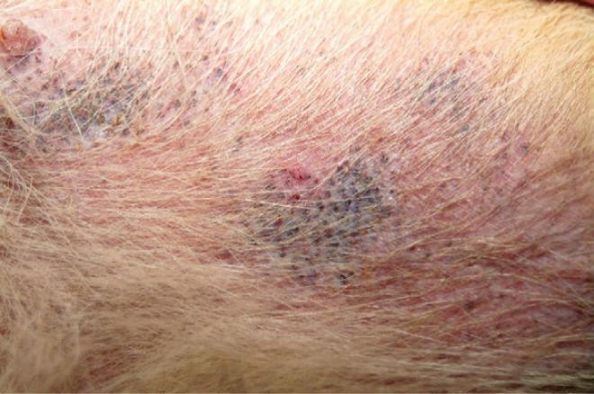 Сыпь на коже - признак саркоптоза